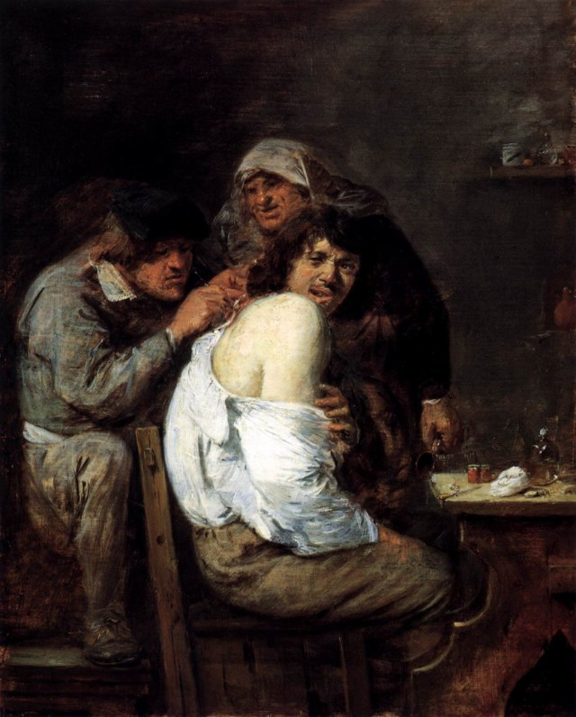 Adriaen Brouwer's 'The Back Operation,' 1636, captures only some of the pain of surgical interventions